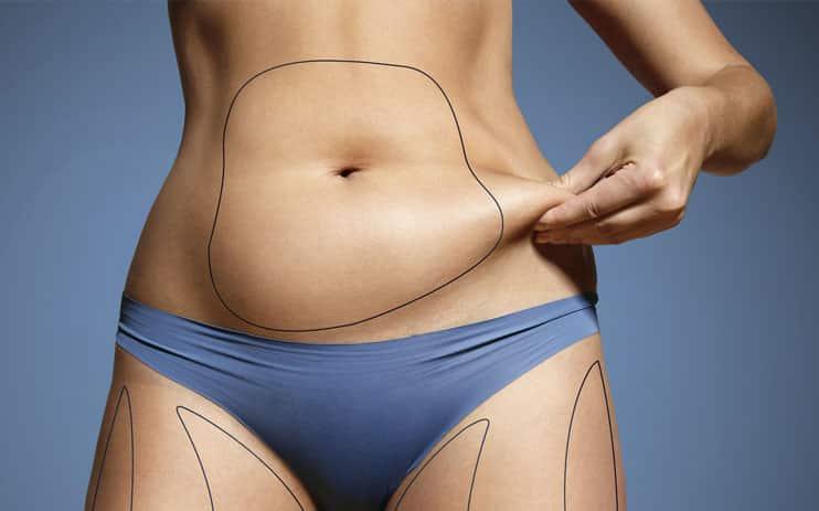 ¿Por qué la cirugía plástica de abdomen es tan popular?