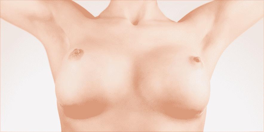 10 consejos sencillos para minimizar las cicatrices después de la cirugía plástica